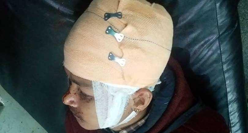 बुटवलको रामनगरमा कांग्रेस कार्यकर्ताको हत्या प्रयास