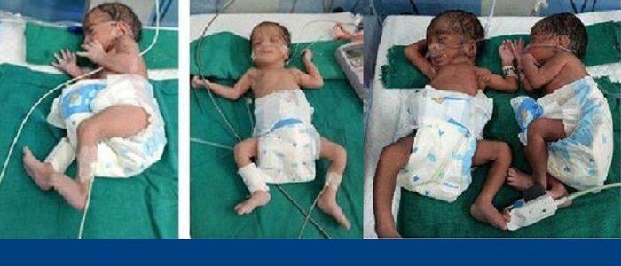 पोखराको मणिपाल शिक्षण अस्पतालमा जन्मिए चम्ल्याहा बच्चा